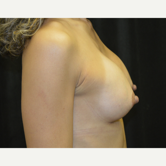 45-54 year old woman treated with Breast Augmentation after 3418144