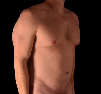 35-44 year old man treated with Tumescent Liposuction before 1864378