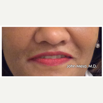 45-54 year old woman treated with Juvederm  for Lip Augmentation before 3059000