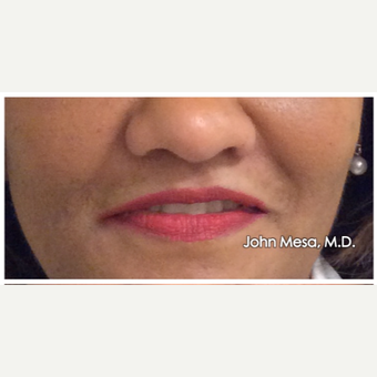 45-54 year old woman treated with Juvederm  for Lip Augmentation after 3059000