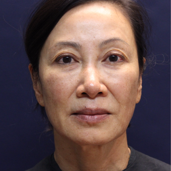 65-74 year old woman treated with Injectable Fillers after 3176443