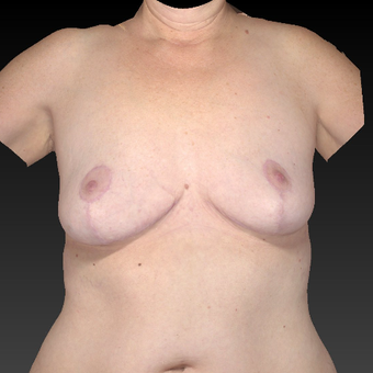 35-44 year old woman treated with Breast Reduction after 3783906