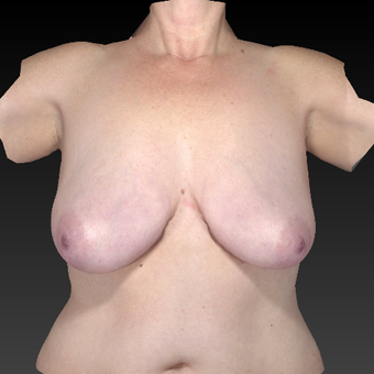 35-44 year old woman treated with Breast Reduction before 3783906