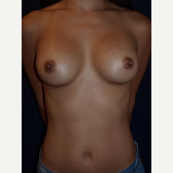 25-34 year old woman treated with Breast Gummy Bear Implants after 3082387