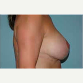 Breast Augmentation after 3058288