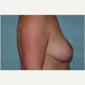 Breast Augmentation before 3058288