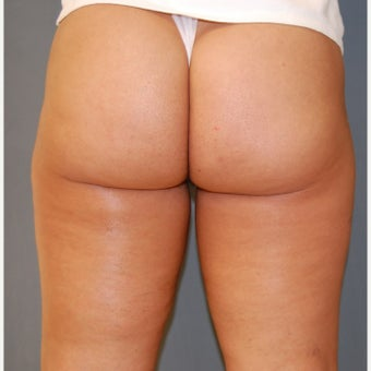 35-44 year old woman treated with Velashape after 1609593