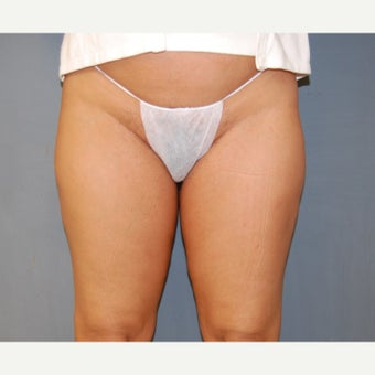 35-44 year old woman treated with Velashape 1609593
