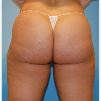 35-44 year old woman treated with Velashape before 1609593