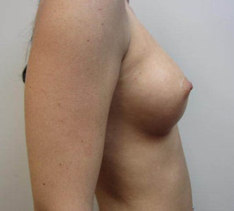 Fat Transfer To Breast after 1271072