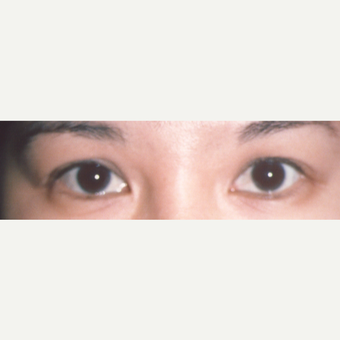 25-34 year old woman treated with Eyelid Surgery before 3544720