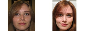 Mole Removal photos before 951892