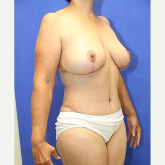 64 year old woman treated with Mommy Makeover after 2125903