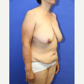 64 year old woman treated with Mommy Makeover before 2125903