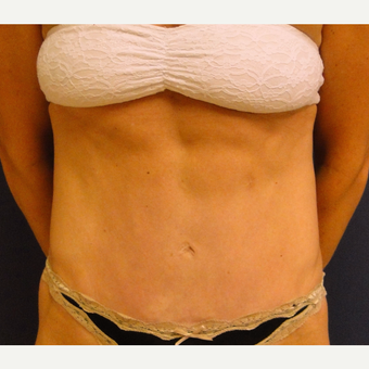 35-44 year old woman treated with Tummy Tuck after 3240161