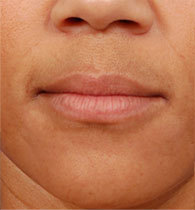 Juvederm - before and after  before 1056240