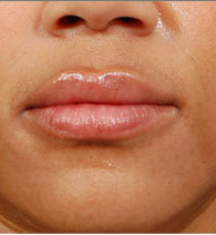 Juvederm - before and after  after 1056240