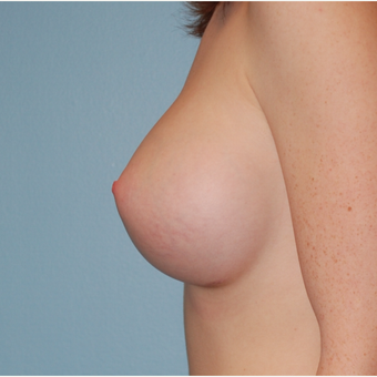 18-24 year old woman treated with Breast Augmentation after 3069324