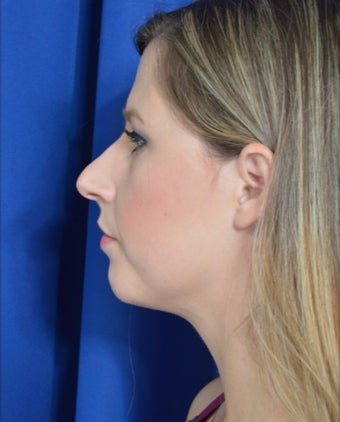 25-34 year old woman treated with Rhinoplasty in New Orleans before 3271506