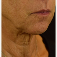 45-54 year old woman treated with Photofacial before 3109371