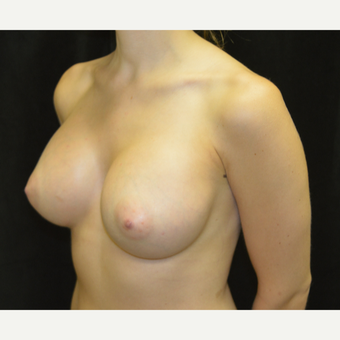 18-24 year old woman treated with Breast Implants after 3418246