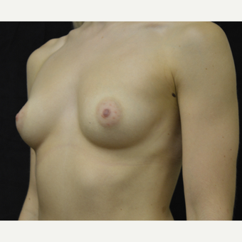 18-24 year old woman treated with Breast Implants before 3418246