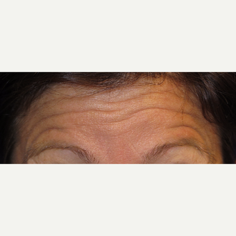 38 year old woman treated with Botox before 3670352