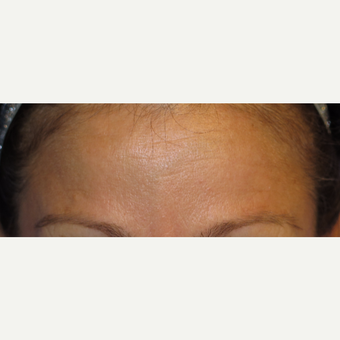 38 year old woman treated with Botox after 3670352