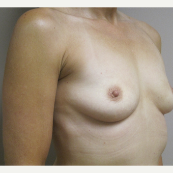 Breast Augmentation before 3577933