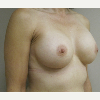 Breast Augmentation after 3577933
