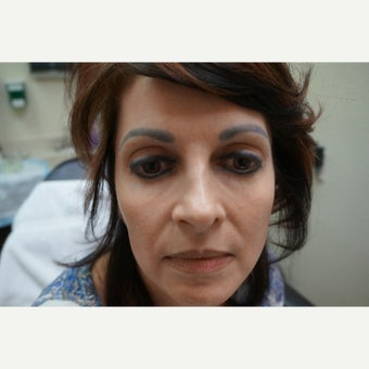 35-44 year old woman treated with FUE For Eyebrow Transplant before 1548403