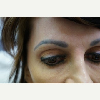35-44 year old woman treated with FUE For Eyebrow Transplant 1548403