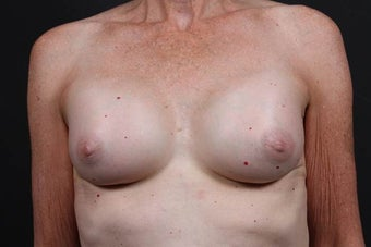This patient underwent a breast augmentation  after 942996