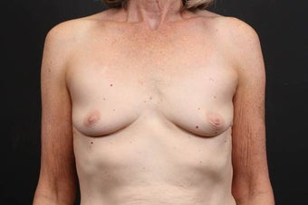This patient underwent a breast augmentation  before 942996