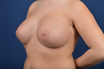 27 Year Old Female - Breast Augmentation after 267422