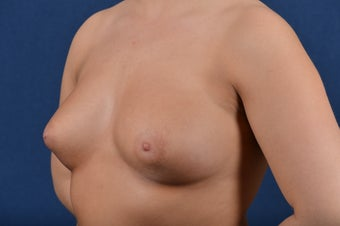 27 Year Old Female - Breast Augmentation before 267422