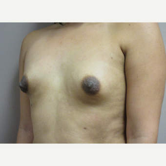 Breast Augmentation before 3789001