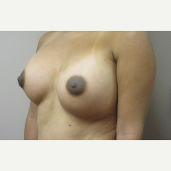 Breast Augmentation after 3789001