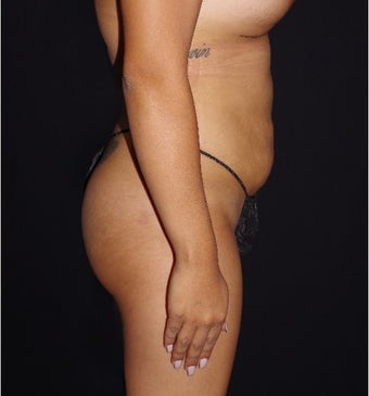 25-34 year old woman treated with Butt Lift and Breast Augmentation after 3644450