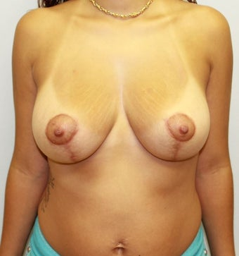 Breast Lift / Mastopexy for Sagging Breasts After Childbirth after 1040407