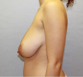 Breast Lift / Mastopexy for Sagging Breasts After Childbirth 1040407