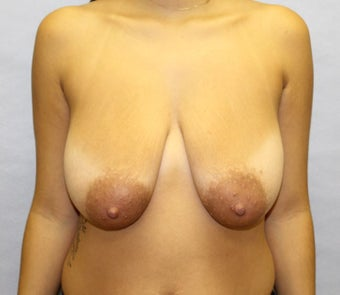 Breast Lift / Mastopexy for Sagging Breasts After Childbirth before 1040407