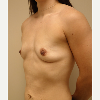 25-34 year old woman treated with Breast Augmentation before 3813779