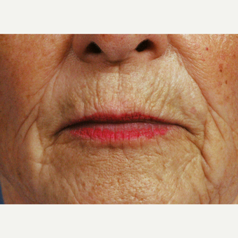 65-74 year old woman treated with Dermabrasion before 3761508