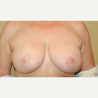 55-64 year old woman treated with Breast Reduction after 3754882