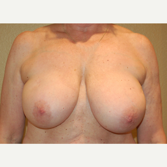55-64 year old woman treated with Breast Reduction before 3754882