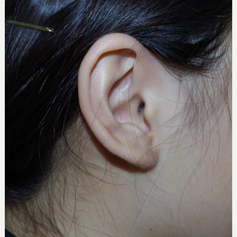17 or under year old female treated with Ear Lobe Surgery after 3741885
