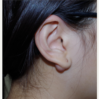 17 or under year old female treated with Ear Lobe Surgery before 3741885