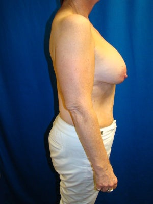 Benelli Lift, Revision Breast Surgery, Silicone gel Implants 1454000