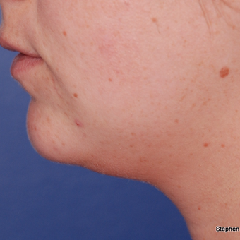 18-24 year old woman treated with Kybella after 3624379